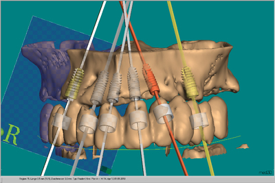Guided Systeme in CeHa imPLANT® von C. Hafner integriert