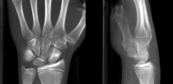 15 jähriger Patient mit Extensionstrauma des linken Handgelenkes. Die Röntgenaufnahmen des Handgelenkes zeigen eine unregelmäßige Darstellung der radialen Gelenkfläche des Mondbeines bei noch offenen Wachstumsfugen