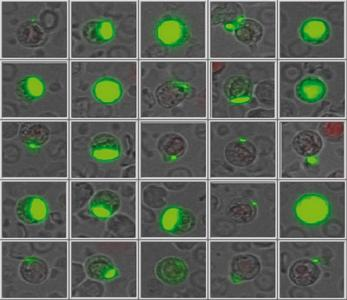 Erscheinungsbild zirkulierender, lebender Tumorzellen (Quelle: SIMFO GmbH)
