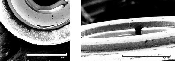 Die durch den Montageprozess entstandenen, kritischen Partikel oder Flitter (links) wurden durch die selektive Schneestrahlreinigung entfernt.
