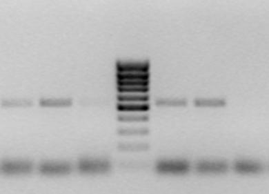 Nachweis der Herpes-Virus-DNA. Die spezifische Länge des über die PCR vermehrten DNA-Abschnittes (Banden) wird anhand eines Größenstandards (Bandenmuster, Mitte) bestimmt