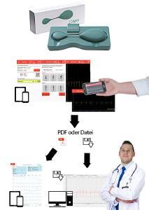 Savvy PCARD erlaubt ununterbrochene kabellose EKG-Überwachung