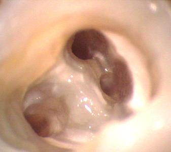 Blick durch das Dentalmikroskop in Wurzelkanäle