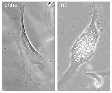 """Gesunde Hautzelle (links). Mit """"Thirdhand' smoke"""" behandelte Zelle (rechts). Die Schädigung (Vakuolenbildung) ist deutlich zu erkennen"""
