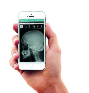 HealthDataSpace stellt StartUps und Forschungsgruppen ein kostenloses Entwicklungs-Toolkit für Gesundheits-Apps zur Verfügung.