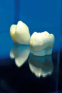 New value-added opportunities for dental technology laboratories