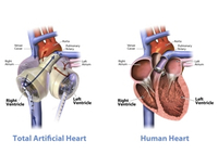 2 U.S. Hospitals Begin Certification To Implant SynCardia Total Artificial Heart
