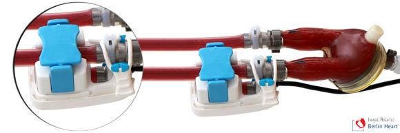 Visualisierung des kundenspezifischen SONOFLOW® Clamp-On Ultraschall-Durchflusssensors an einer EXCOR® Kanülen-Pumpenvariante der Berlin Heart GmbH (Bildrechte: Berlin Heart GmbH)