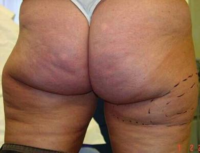 Liposuction ®medicalpicture