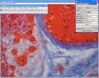 Abbildung: Screenshot mit Bedienoberfläche (GUI) des Treibers
