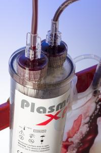 Neu: PlasmaXpress trennt Blutkomponenten mittels Schwerkraft