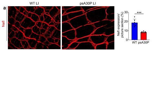 Schon 2 Monate nach der Infektion, wenn das Gehirn noch nicht betroffen ist, zeigen Darmpräparate von Parkinson-Mäusen (rechts) bereits deutliche Auffälligkeiten gegenüber denen von gesunden Mäusen (links).
