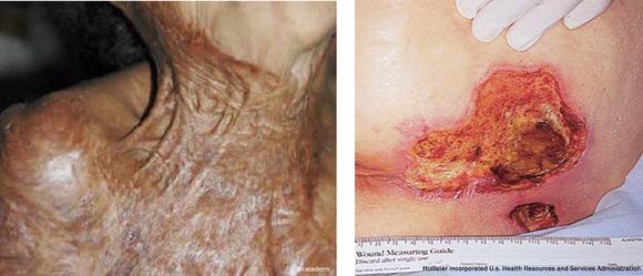 Abb.3: Verbrennungen mit Narbenkontraktur und fehlendem Unterhaut-Fettgewebe (links), Tiefe Druckgeschwüre (rechts), Bild: Strataderm (links); Hollister Incroporated / U.S. Health Resources and Services Administration (rechts)