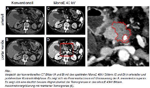Dual-Layer Spektral-CT: Bessere Therapieplanung beim Bauchspeicheldrüsenkrebs