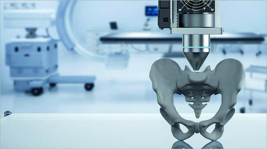 3D printing as a new feature in preoperative orthopedic planning.