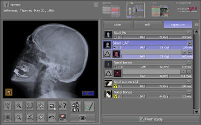 New version of dicomPACS®DX-R X-ray acquisition software guarantees a more efficient workflow