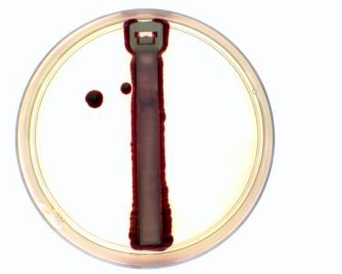 Bei dem herkömmlichen Kabelbinder sind die Oberflächenbakterien im Vergleich zum Ty-Fast Ag+ deutlich zu erkennen /Quelle: ABB