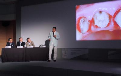 Prof. Antonio Cerutti (Brescia), Prof. Peter Eickholz (Frankfurt), Prof. Philippe Bouchard (Paris) und Prof. Stephen Chu (New York) diskutierten über die richtige Be-handlung des abgebrochenen rechten vorderen Schneidezahns