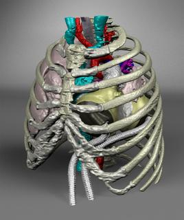 Case Report on 14-Year-Old Pediatric Patient Bridged to Transplant with SynCardia Total Artificial Heart Published in the Journal Perfusion