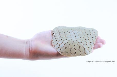 3D-gedrucktes Schädelimplantat aus PEEK
