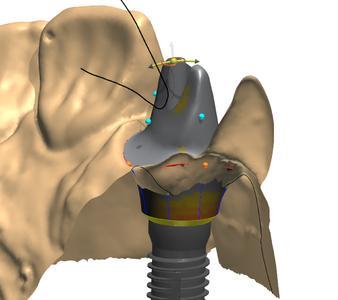 Der AbutmentDesignerTM ermöglicht cara Nutzern ab Oktober 2010 ein schnelles und präzises Gestalten von individuellen Abutments