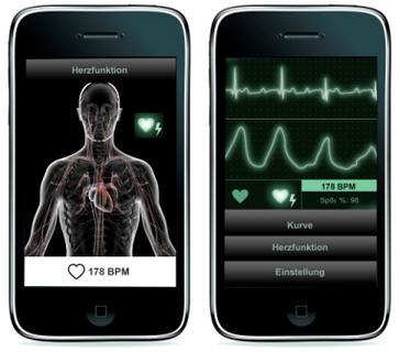 m2m BLE   vom Herzfrequenzmesser direkt aufs iPhone (Webgröße)