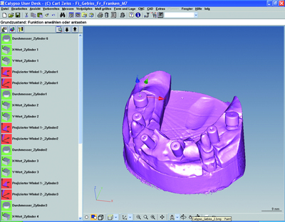 Measuring Technology from Carl Zeiss Enables Perfect Fit of Dental Prosthetics