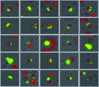 Erscheinungsbild zirkulierender Tumorzellen