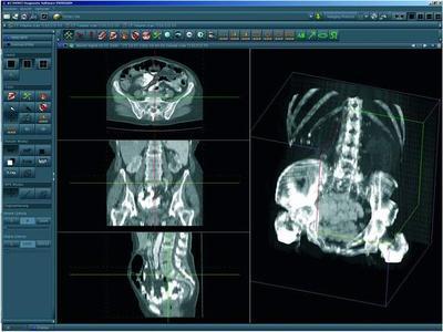 Die Radiologie-Software NEXUS / RIS