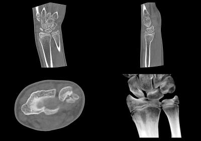 DVT-Aufnahme eines kindlichen Handgelenks nach einem Sturz – Spezielle Low Dose-Protokolle reduzieren die Strahlenbelastung signifikant und ohne Verlust an Bildaussagekraft.