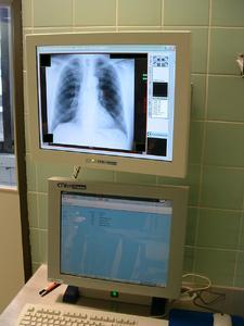Matrox Extio RGU Krankenhaus Schwetzingen OP Displays