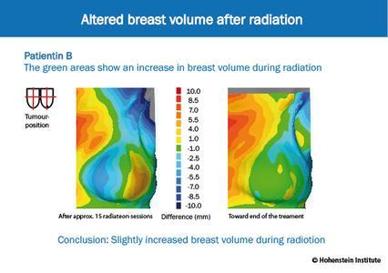 Die Bestrahlungen wirken sich bei den untersuchten Brustkrebs-Patientinnen sehr unterschiedlich auf das Brustvolumen aus. Sowohl Zu- wie auch Abnahmen sollen durch den Spezial-BH kompensiert werden. Patientin A: Zunahme des Brustvolumens während der Bestrahlung ©Hohenstein