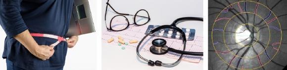 Adipositas-Patienten haben ein erhöhtes Risiko für Herz-Kreislauf-Erkrankungen, Schlaganfälle und schwere COVID-19 – Verläufe (© Pixabay, Imedos Systems GmbH)