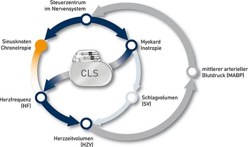 Neue Studie untersucht, ob Closed-Loop-Stimulation das Schlaganfallrisiko bei Schrittmacher- und ICD-Patienten reduziert