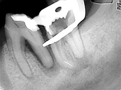 Röntgenaufnahme 2 mit Sicht auf das abgebrochene Instrument