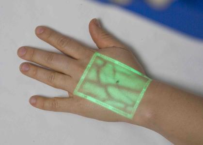 Das lebhafte grüne Bild, das VeinViewer Vision zeichnet, bietet vor allem für Kinder eine willkommene Ablenkung vom Venenpunktionsvorgang.