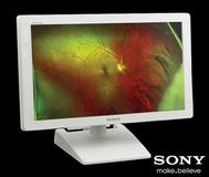 Austauschaktion von Sony Medical Displays