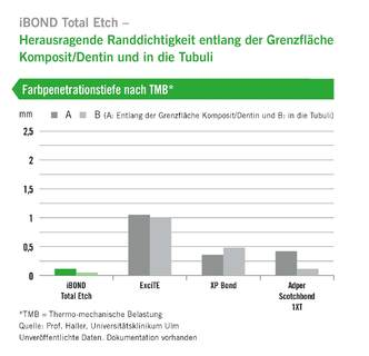iBond Total Etch Diagramm