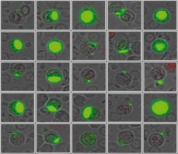 Erscheinungsbild lebender, im Blut zirkulierender Tumorzellen (Quelle: SIMFO GmbH)