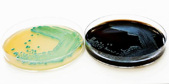 Schnellmethode Listeria