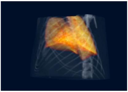 Die vorklinische Erforschung der Phasenkontrast-Computertomografie an Mausmodellen zeigt, dass verschiedene Lungenkrankheiten, wie die das Lungenemphysem (oder allgemeiner die COPD) und die Lungenfibrose, deutlich besser und eher diagnostisch identifiziert werden kann, © Pfeiffer/ TUM