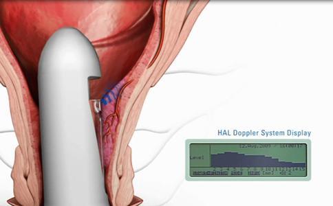 Probe with Doppler sensor for detecting arteries