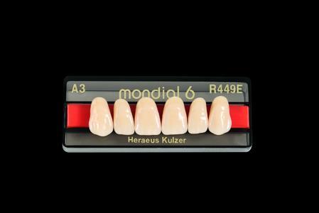 Die neue Zahnlinie Mondial 6E von Heraeus sorgt mit ihrem ausgeprägtem Schneide-Dentin-Kontrast für eine lebendige Ästhetik